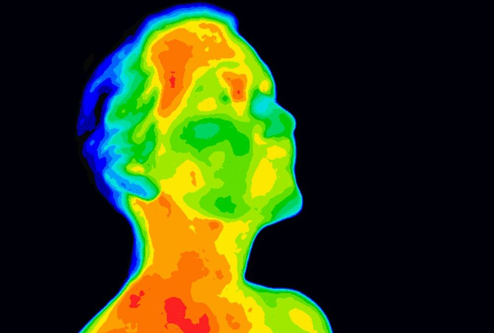 Thermal Imaging for the Monitoring of Skin Conditions in Ostomy Patients